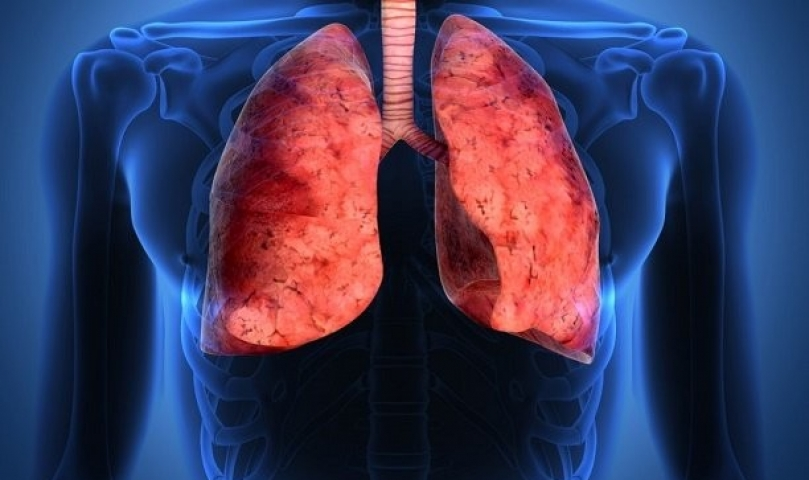 Akciğer Kanseri Nedir?